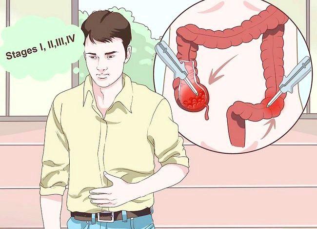 इमेज शीर्षक से ट्रीटमेंट कोलन कैंसर चरण 1