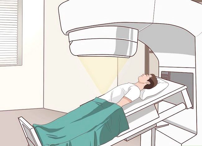 इमेज शीर्षक से ट्रीटमेंट कोलन कैंसर चरण 8